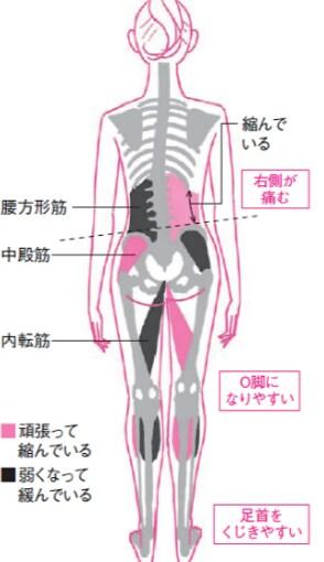 骨盤のゆがみがもたらす影響