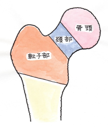 股関節の変形について