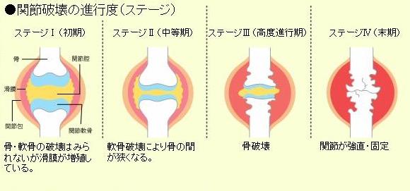 関節リウマチの診断