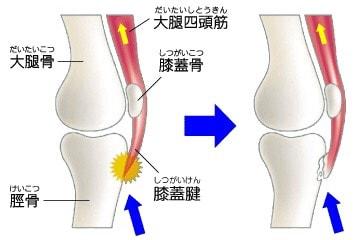 膝下が痛い・オスグッド病~10代のスポーツ障害~