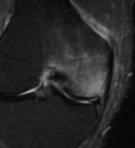 長引く骨の痛みは!~骨挫傷(Bone bruise)~